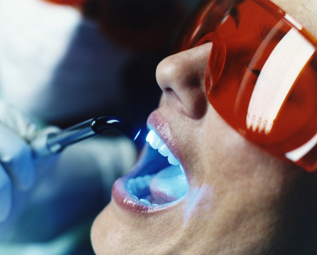 Teeth whitening light in Columbia SC