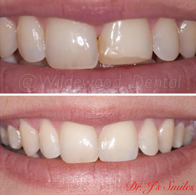 Real patient's smile before and after dental bonding