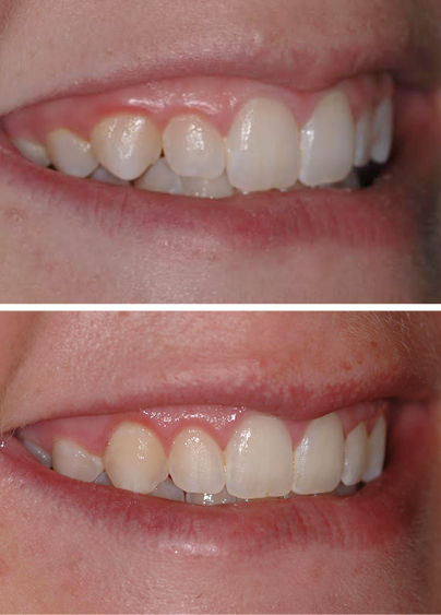 An actual patient before and after gum contouring, a cosmetic dentistry treatment in Columbia, SC.
