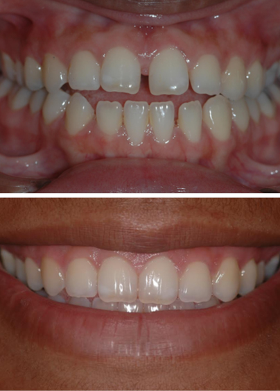An actual patient before and after getting Invisalign, a cosmetic dentistry treatment, in Columbia, SC