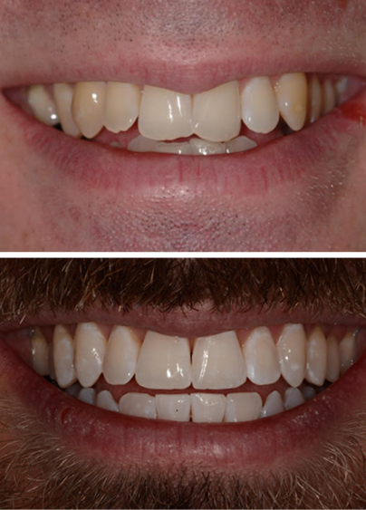 An actual Invisalign patient before and after cosmetic dentistry treatment in Columbia, SC