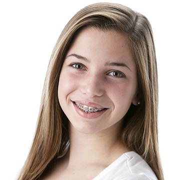 Teenage girl smiling with braces she received as part of the cosmetic dentistry services available at this dentist in Columbia, SC