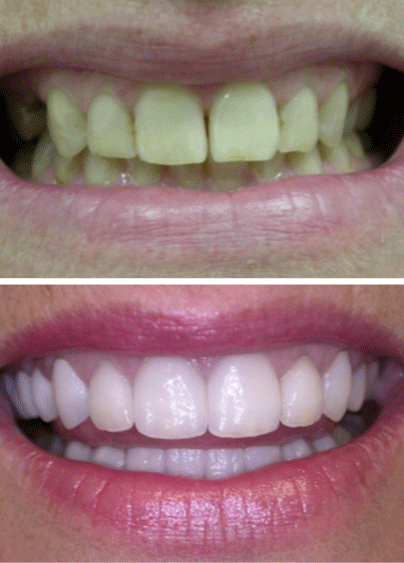 An actual before and after cosmetic dentistry treatment in Columbia, SC