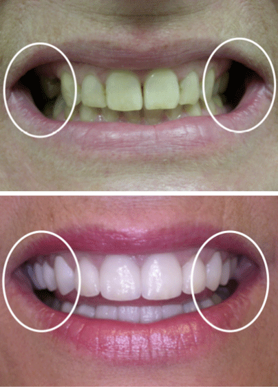A patient's before and after smile design treatment with our cosmetic dentistry in Columbia, SC