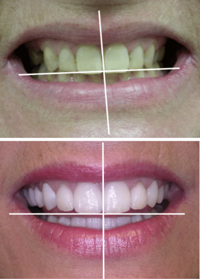 A patient's smile before and after cosmetic dentistry treatment