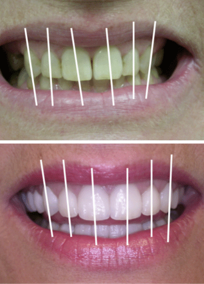 A patient's smile before and after cosmetic dentistry care in Columbia, SC
