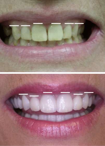 Before and after smile design, a cosmetic dentistry treatment at WildeWood Aesthetic Dentistry