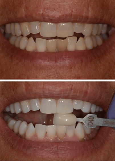 An actual patient before and after getting teeth whitening, a cosmetic dentistry treatment in Columbia, SC.