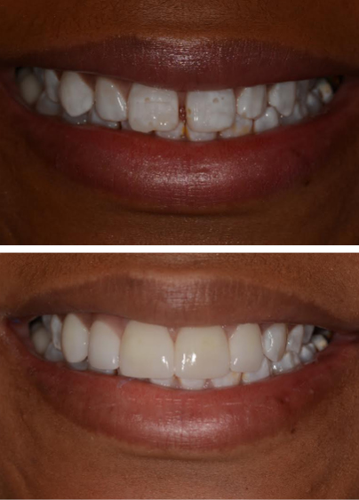 Before and after photo of patient with prepless veneers.