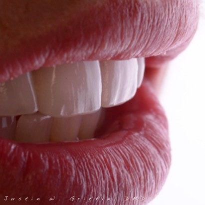 Actual porcelain veneers patient