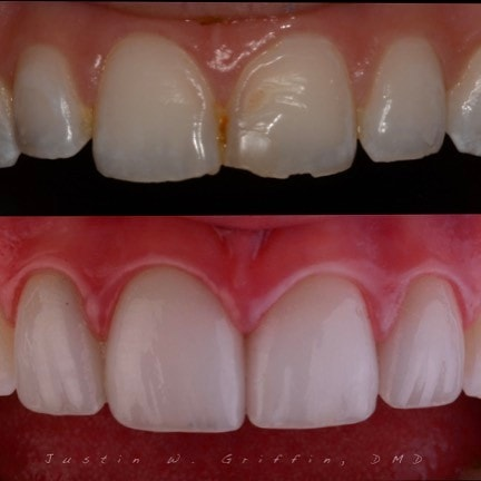 Actual patient who received porcelain veneers at WildeWood Aesthetic Dentistry
