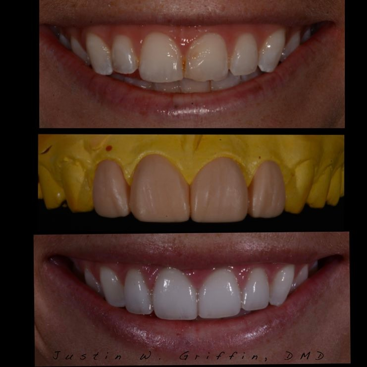 Our patient's porcelain veneers journey in 3 visits