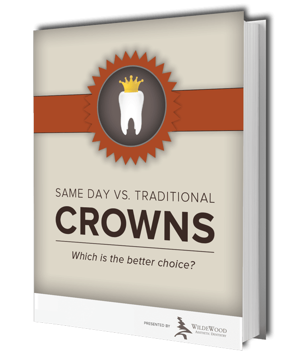 Same Day vs. Traditional Crowns ebook download preview