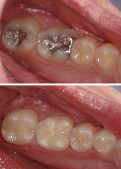 Old metal fillings removed and replaced with metal-free fillings during this restorative dentistry treatment