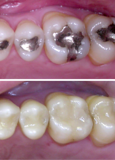 Old metal fillings removed and replaced with metal-free fillings - a part of our restorative dentistry in Coulmbia, SC