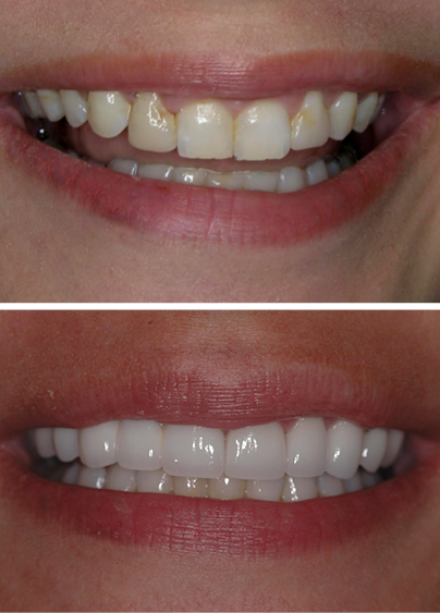 An actual patient before and after getting full mouth rehabilitation, a restorative dentistry treatment