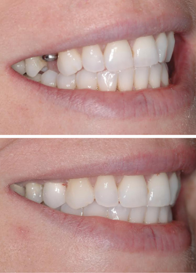 An actual dental implants patient before and after this restorative dentistry treatment