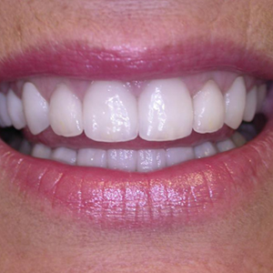 Jean's Teeth After her dental treatments - Smile Gallery - WildeWood Aesthetic Dentistry