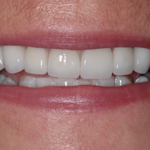 Jo's smile after her dental treatments - Smile Gallery - WildeWood Aesthetic Dentistry