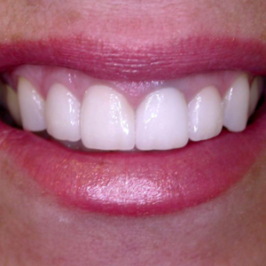 Kim's Smile After her dental treatments - Smile Gallery - WildeWood Aesthetic Dentistry