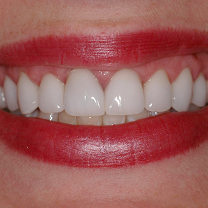 Nicole Smile After her dental treatments - - Smile Gallery - WildeWood Aesthetic Dentistry