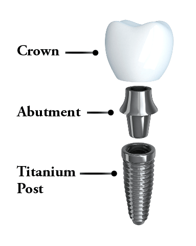 High quality illustration to show that dental implants in Columbia, SC consists of these specific parts: post, abutment, and crown