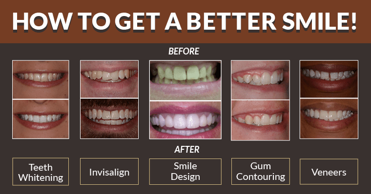 How to get a better smile! Before and after photos of teeth whitening, Invisalign, smile design, gum contouring or veneers.