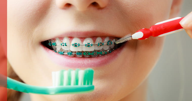 Patient with braces smiling with an ortho brush and toothbrush next to mouth