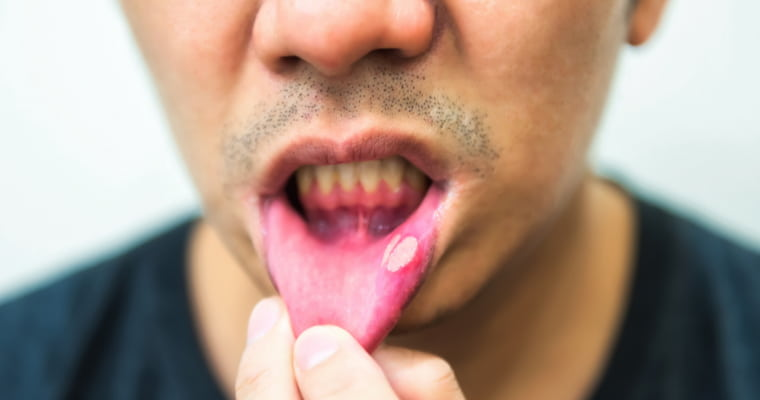 Man with a large canker sore inside his lip