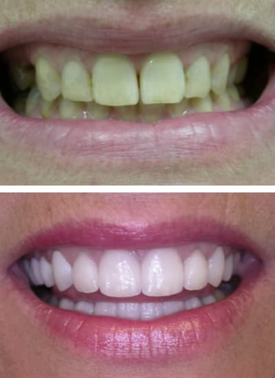 Before and after images of a smile makeover in Columbia, SC