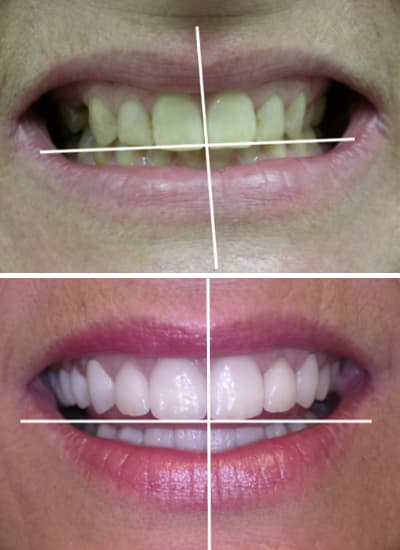 Before and after images of a smile makeover in Columbia, SC with marks to show the mid-line alignment