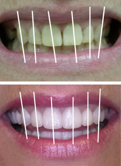 Before and after images of a smile makeover in Columbia, SC with marks to show how the teeth are angled
