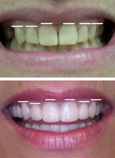 Before and after images of a smile makeover in Columbia, SC with marks to show the gum line and teeth height