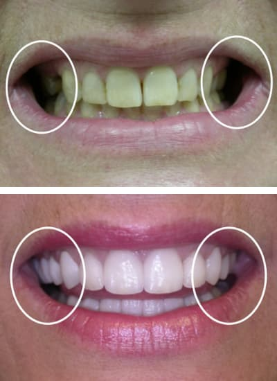 Before and after images of a smile makeover in Columbia, SC with marks to show the smiles' fullness