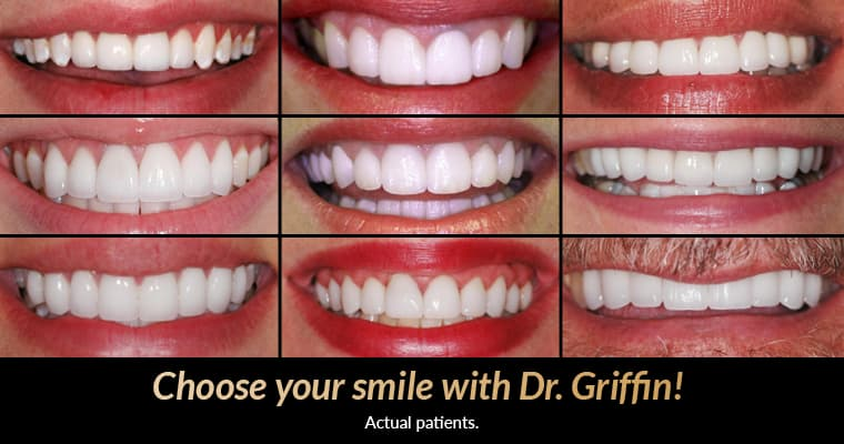 "After photos of smile makeovers by Dr. Justin Griffin with text ""Choose your smile with Dr. Griffin! Actual patients."""