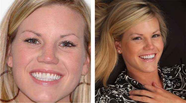 Emily who received porcelain veneers