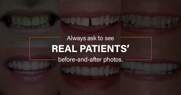 """3 real patients' case photos with text, """"Always ask to see real patients' before-and-after photos."""""""